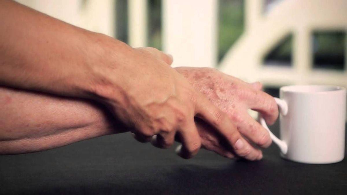 56% de los diagnosticados con Parkinson, no tienen la enfermedad: UNAM