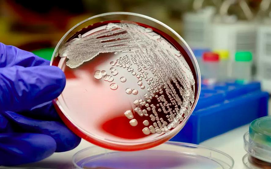 Se esparce por el mundo microbio que provoca infecciones invasivas